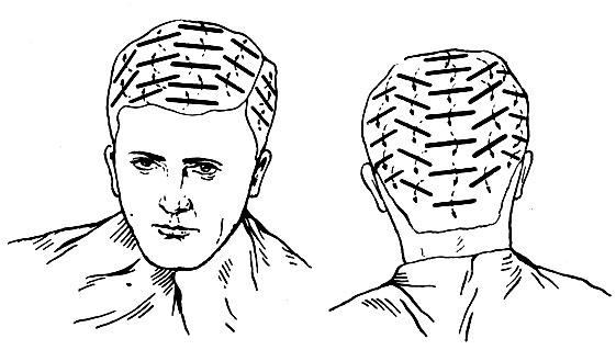 Рис. 196. Расположение коклюшек при накручивании волос