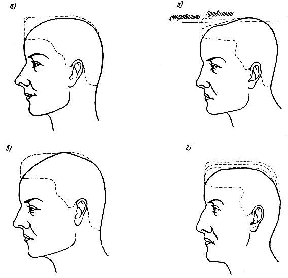 Схема снятия волос на теменной