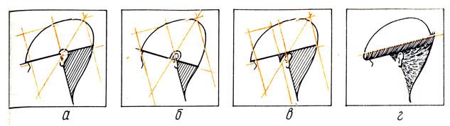 Рис. 86. Приемлемая (а, в, г) и недопустимая (б) форма остромодной стрижки