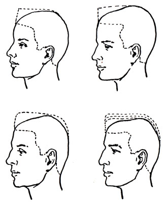 Схема снятия волос на темени